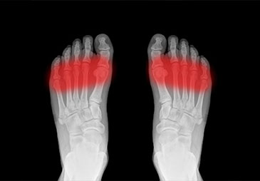 foot x-ray with red shadow to highlight painful area